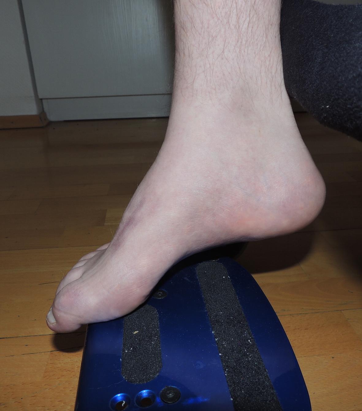 Spasticita nohy