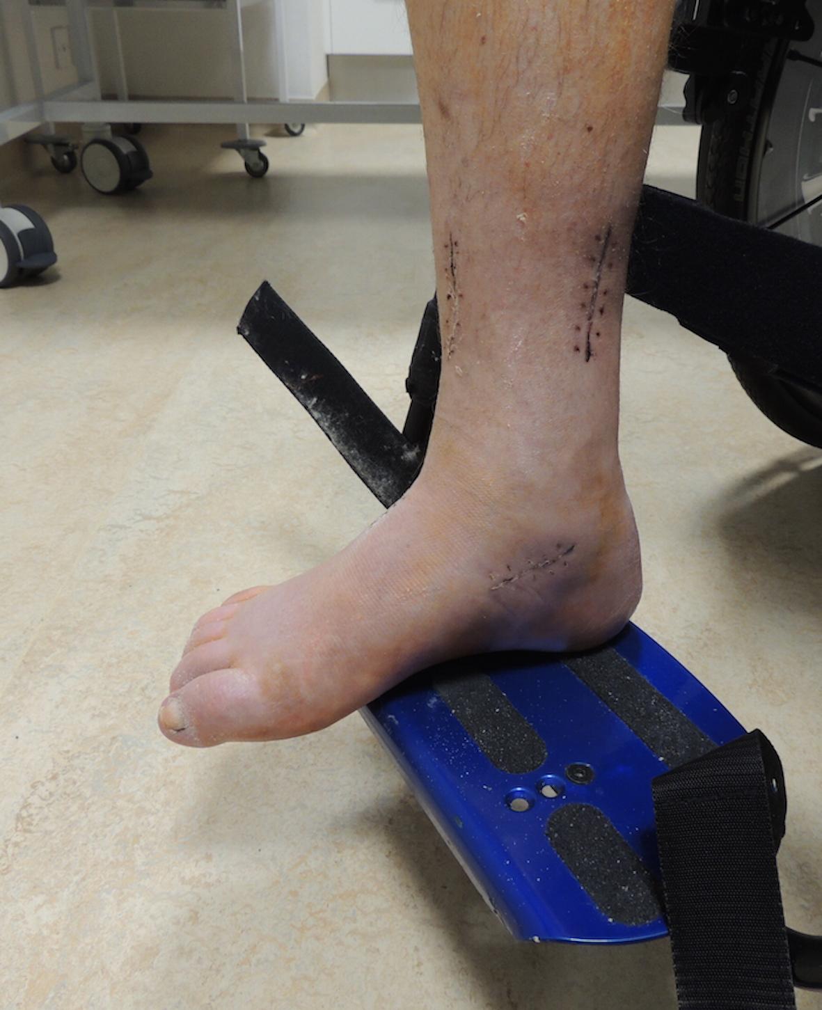 Po operaci spasticity nohy