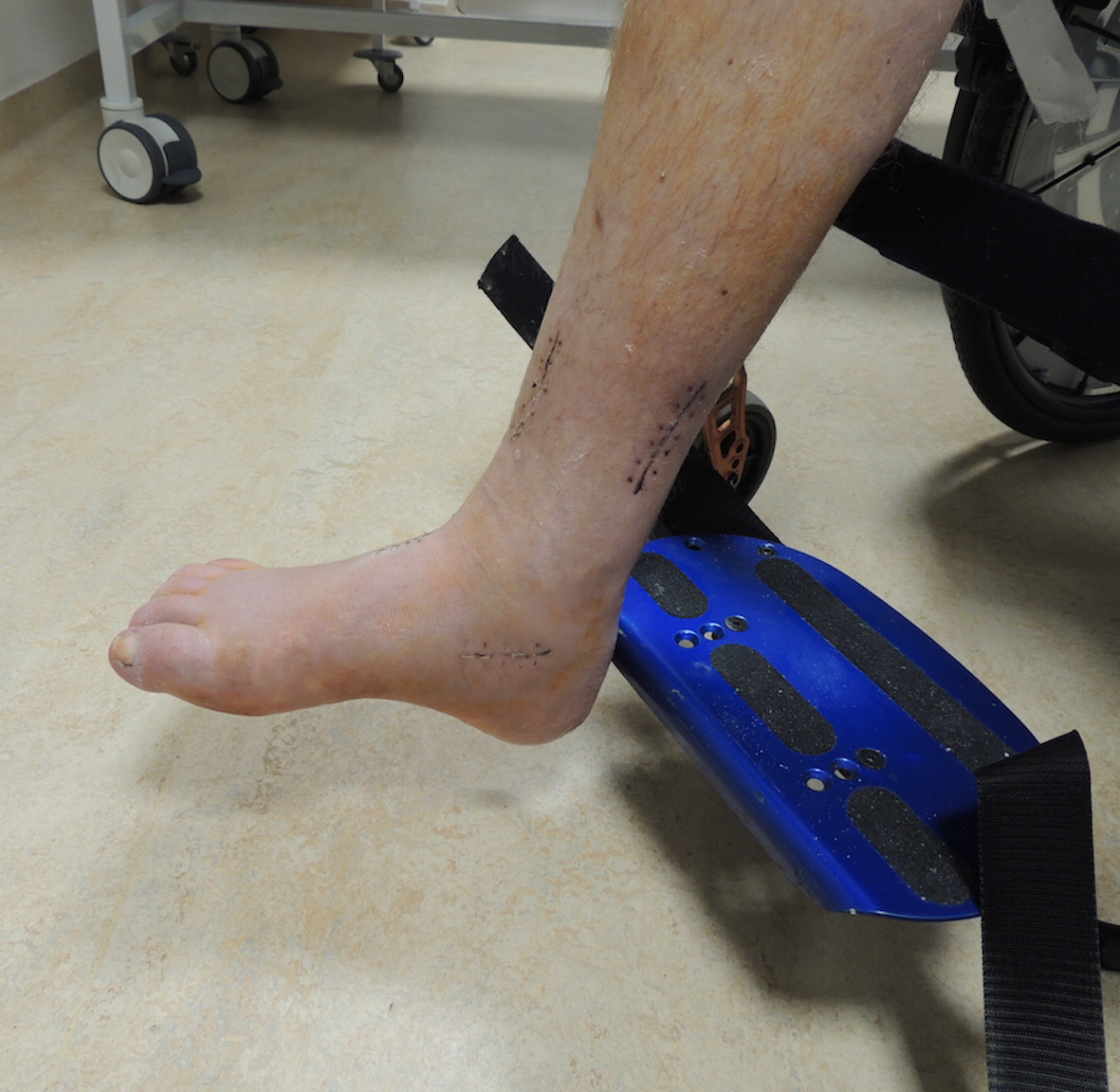 Obnovení funkce nohy