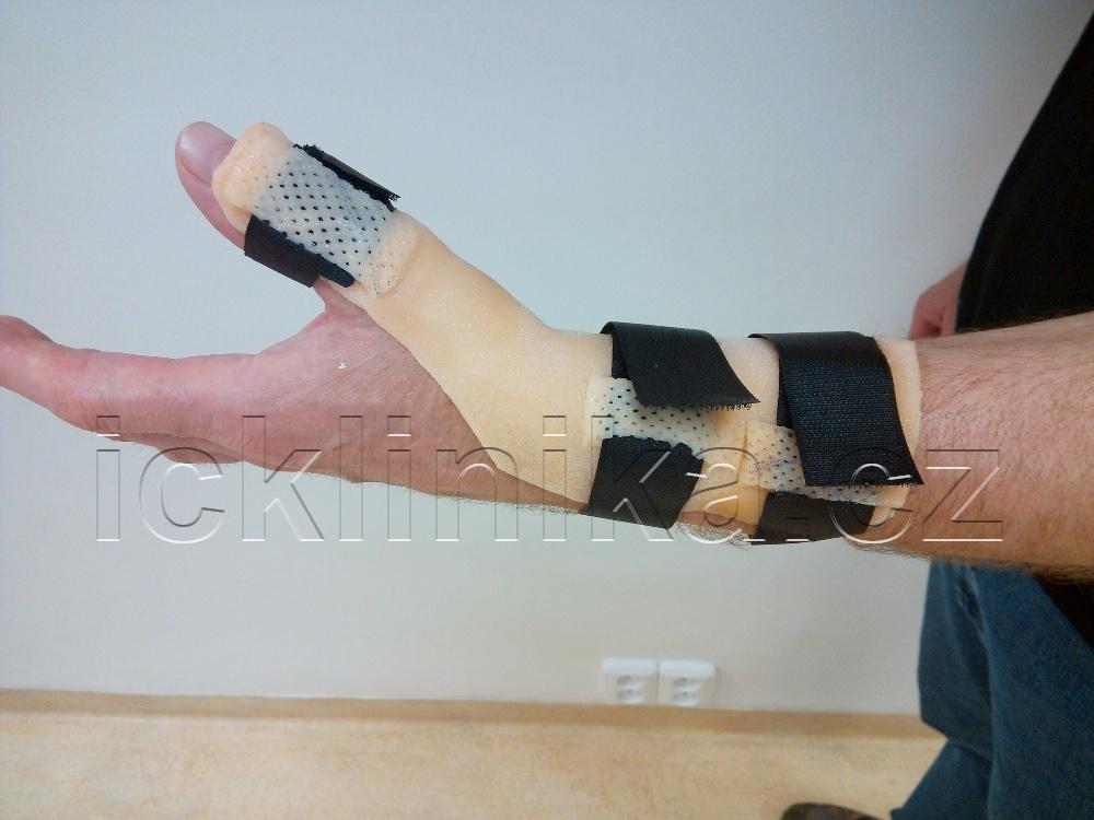 Rehabilitace ruky-ztuhlost kloubů