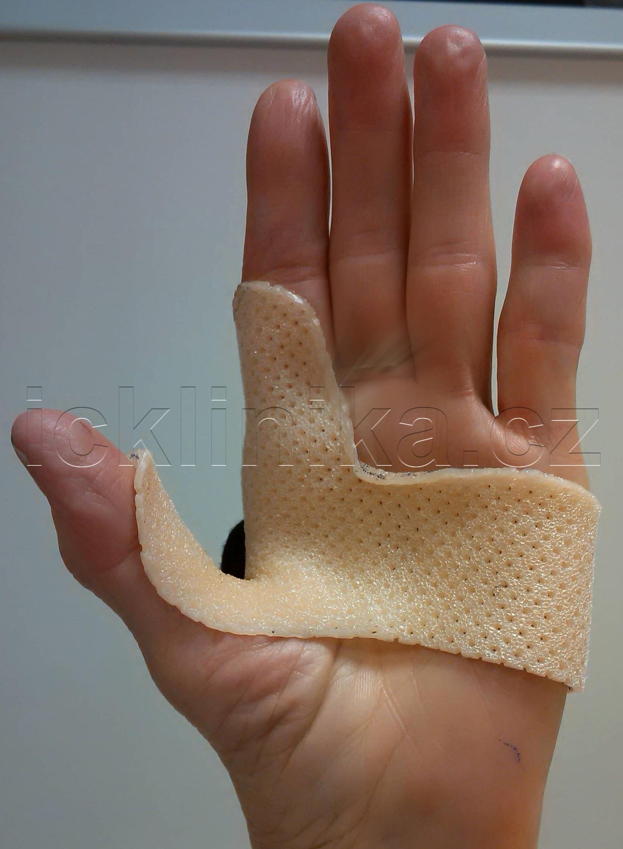 Rehabilitace ruky-dlahování4