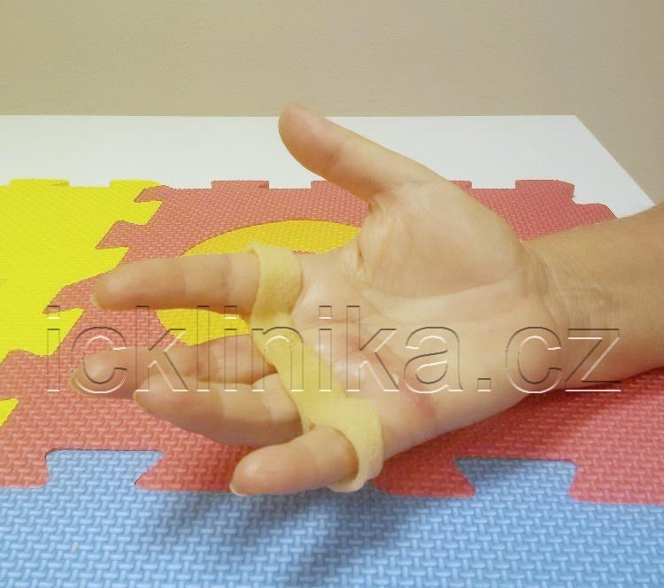 Rehabilitace ruky-ztuhlost kloubů4