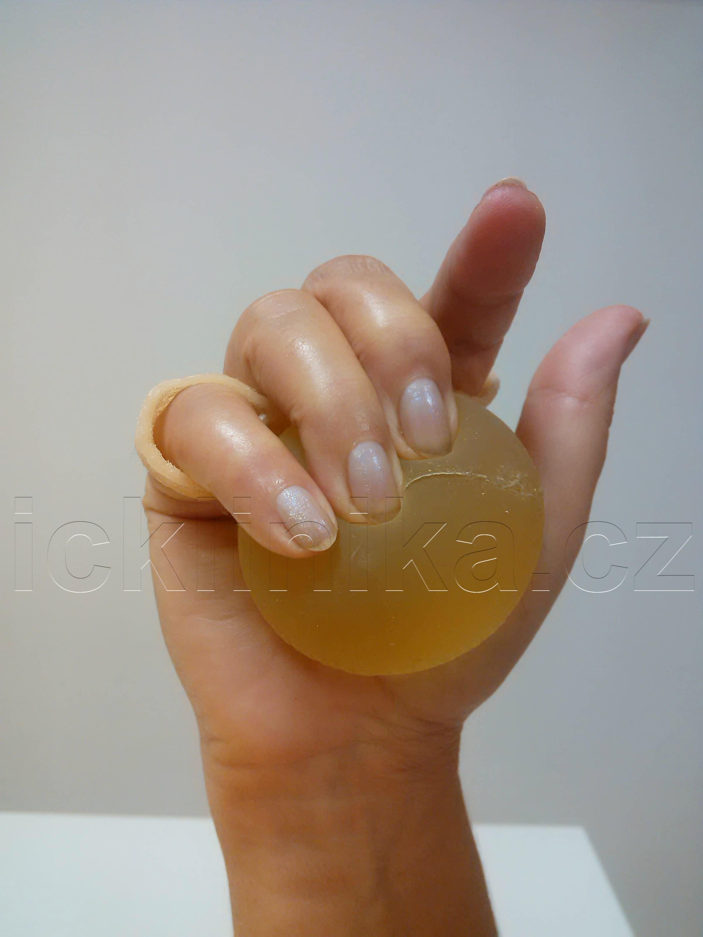 Rehabilitace ruky-ztuhlost kloubů2