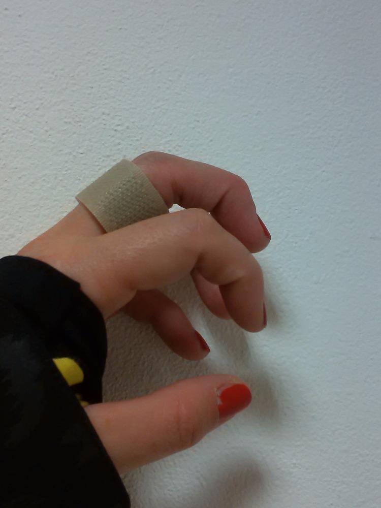 Rehabilitace ruky-šlachové poutko2