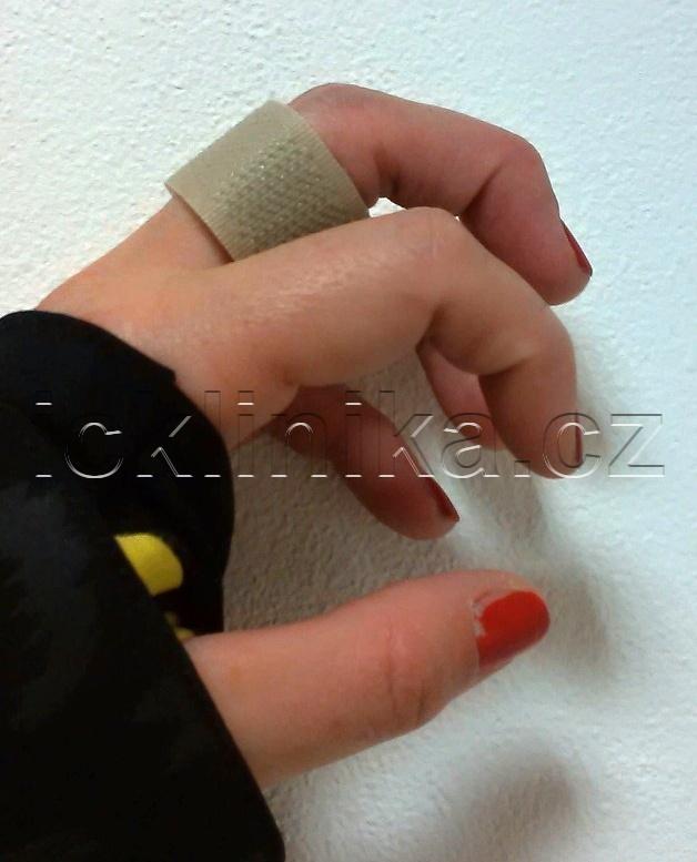 Šlachové poutko-termoplastový prsten2