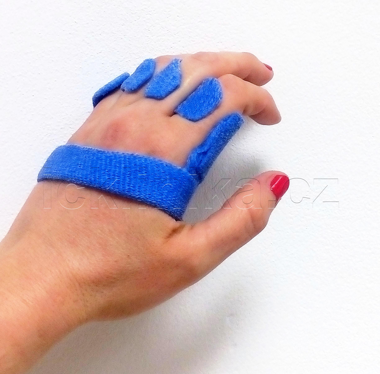 Rehabilitace ruky-revmatoidní artritida6