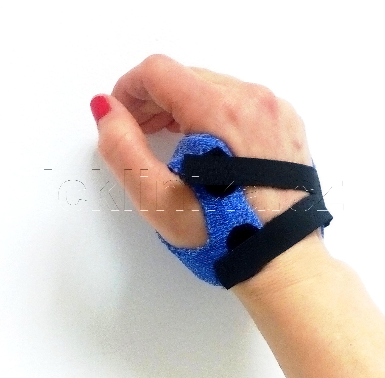 Rehabilitace ruky-revmatoidní artritida4