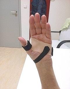 Rehabilitace ruky-revmatoidní artritida