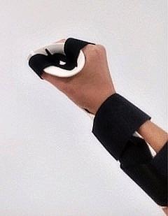 Rehabilitace ruky-revmatoidní artritida2
