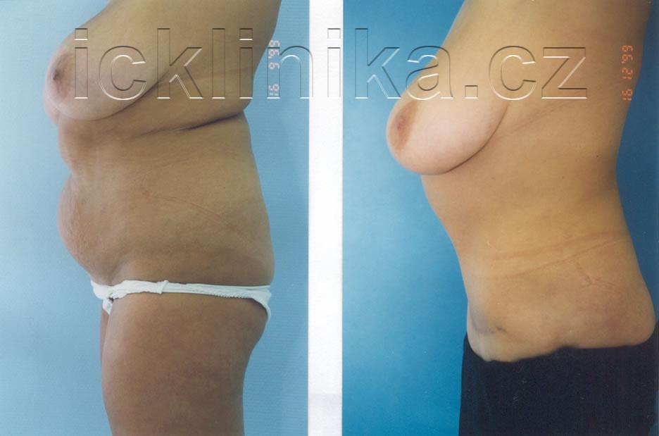 Plastika břicha